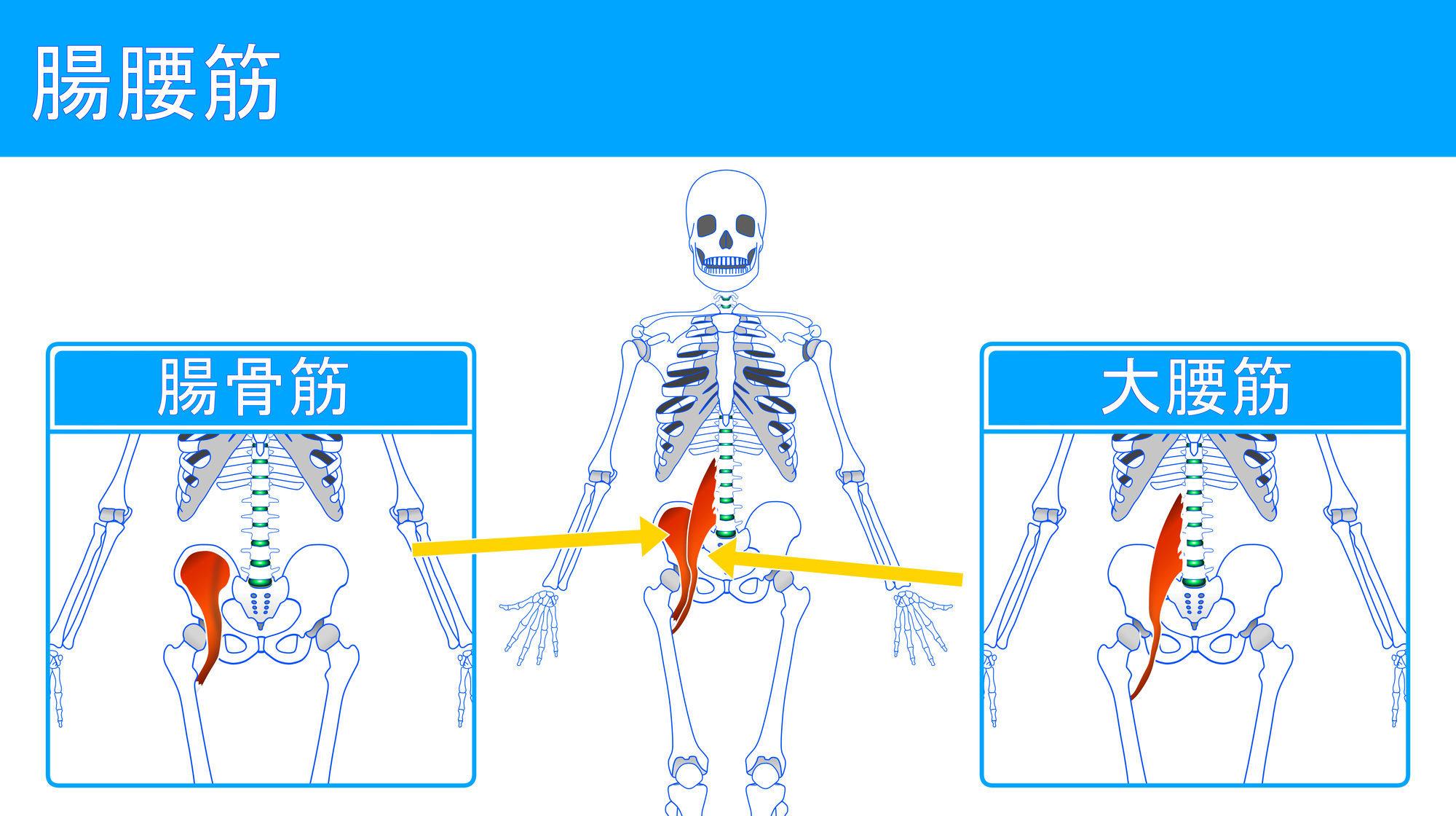 腰痛と反り腰と猫背の原因となる腸腰筋の状態